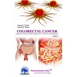 colorectal-cancer-diagnosis-symptoms-and-new-approach-of-treatment-by-capecitabine