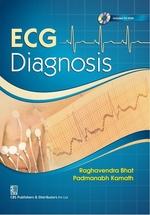 ecg-diagnosis