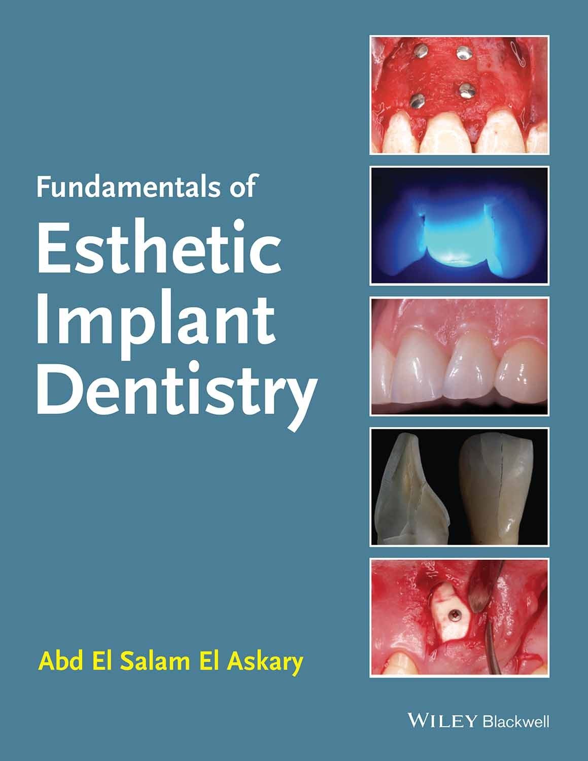 fundamentals-of-esthetic-implant-dentistry