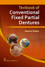 textbook-of-conventional-fixed-partial-dentures