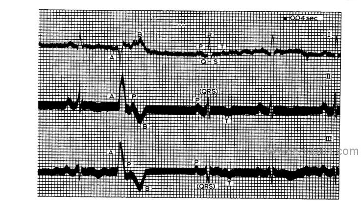 electrocardiogram2.png